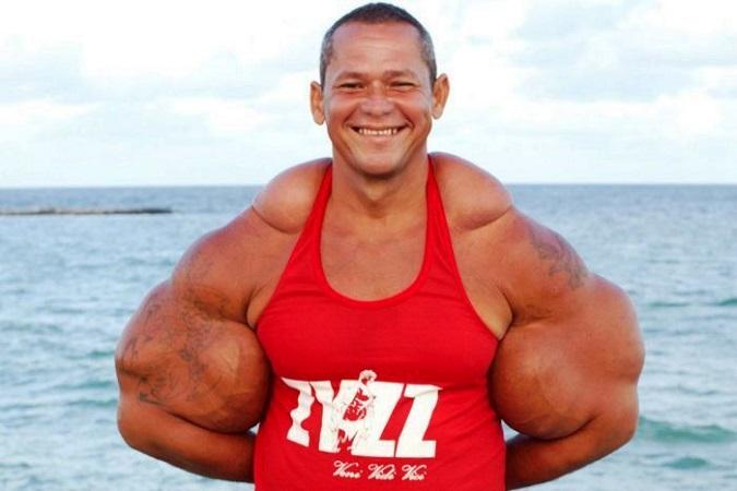 Bodybuilding Supplement Side-Effects